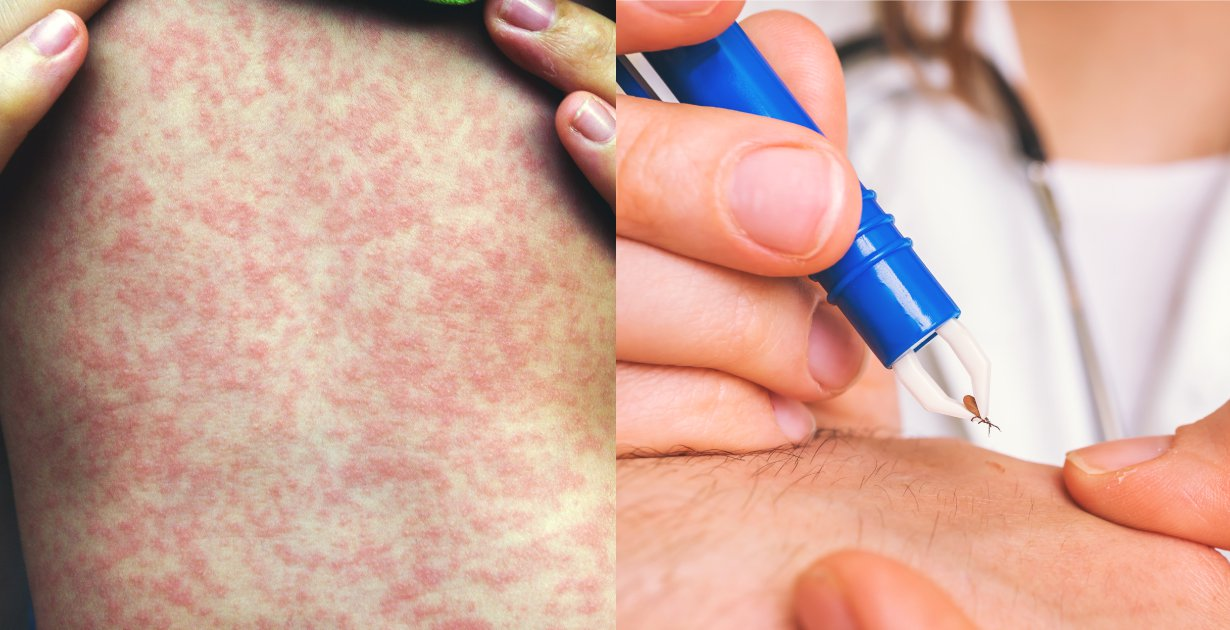 Rocky Mountain Spotted Fever (Tick Bite Prevention + 6 Natural Ways to Help Manage Symptoms)